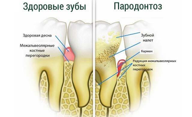 Пародонтоз и здоровый зуб
