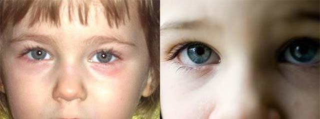Дети с синими веками под глазами