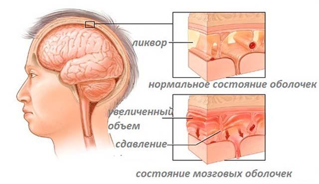 Состояние мозговых оболочек