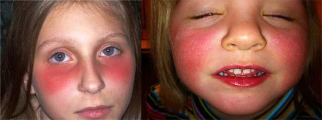 Красные круги под глазами у детей