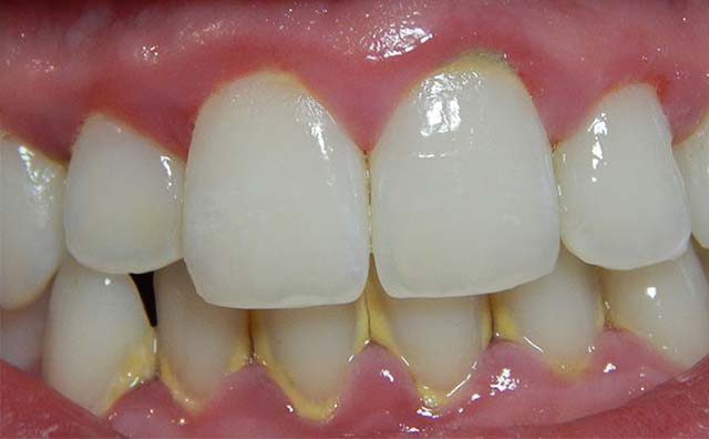 Пародонтит на зубах