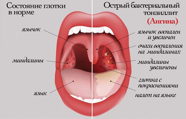 Заболевание горла при ангине