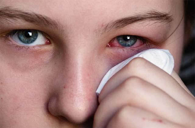 Аллергический отек на лице