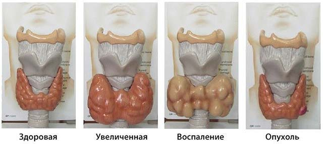 Виды заболеваний железы
