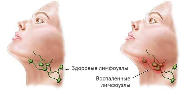 Лимфатические узлы на шее
