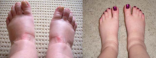 Следы на ногах от обуви