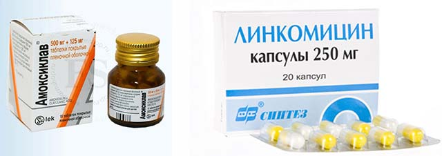 Амоксиклав и Линкомицин