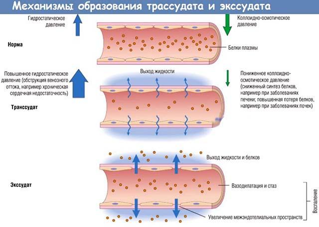 Отток транссудата из тканей