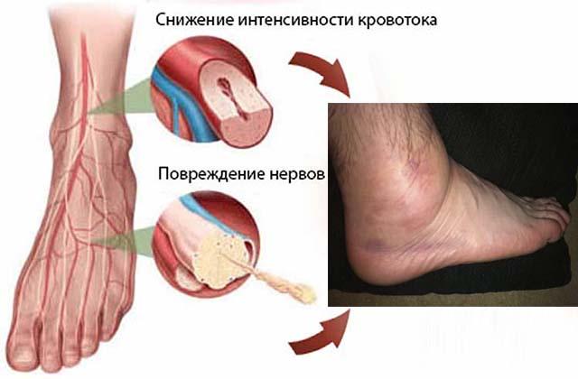 Поврежденные сосуды