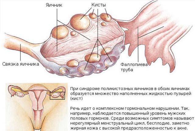 Причины серозометры