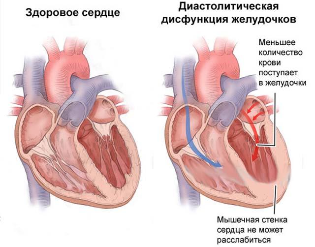 Дисфункции сердечной мышцы