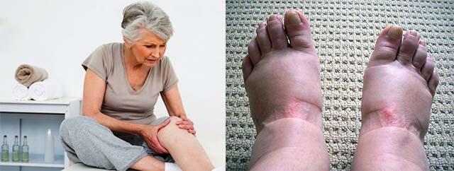 Отек ног у пожилого человека