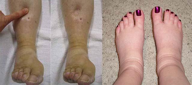 Отечность ног и след от надавливания