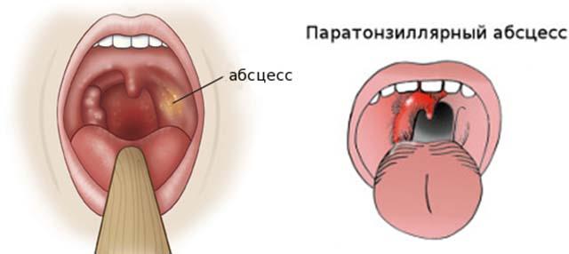 Паратонзиллярный абсцесс
