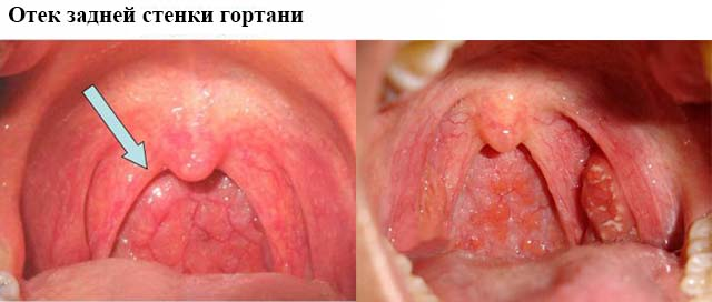 Отек слизистой горла беременность thumbnail