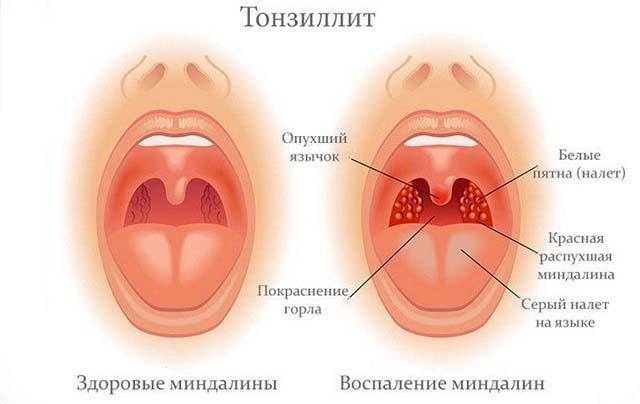 Аллергический тонзиллит