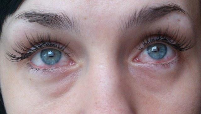 Опухшие глаза после наращивания ресниц