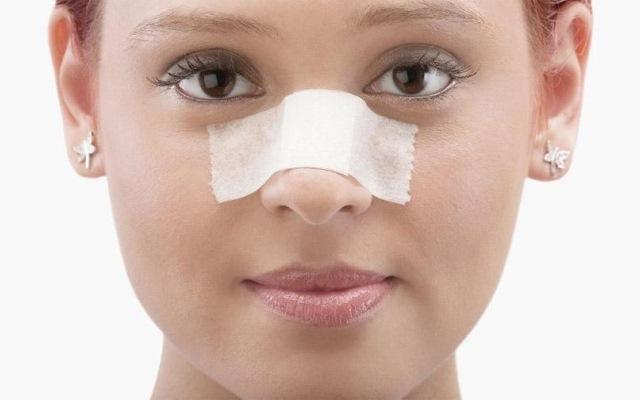 Припухлость носа после ринопластики