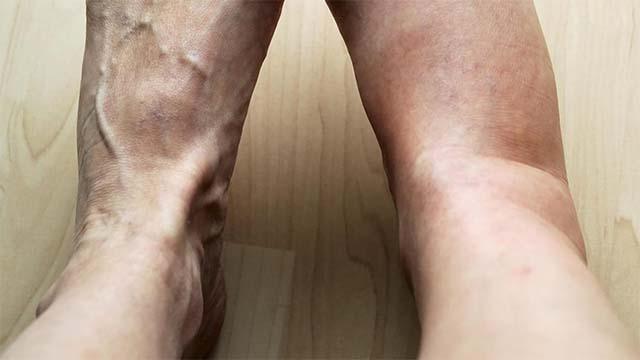 Водянка на ногах у пожилых людей