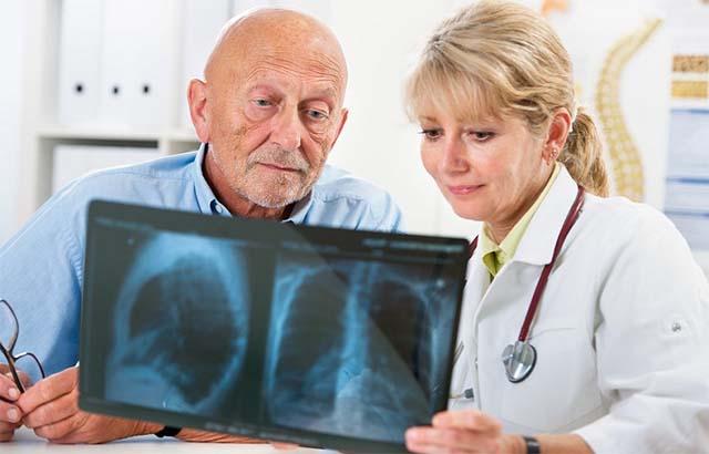 Врач и пациент смотрят снимок легких