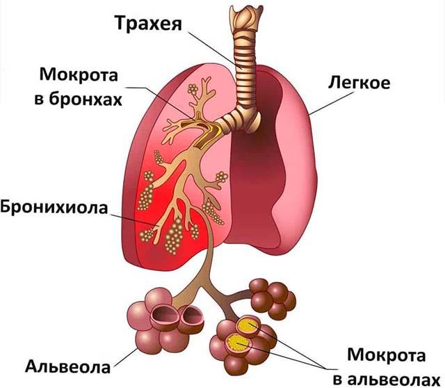 Мокрота в альвеолах