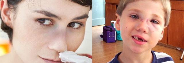 Ушиб носа у взрослого и ребенка