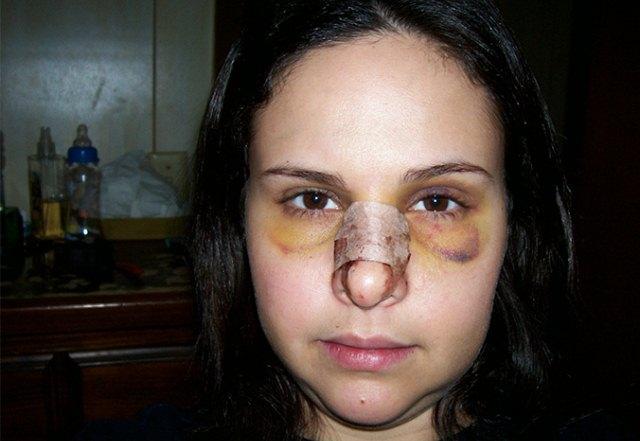 Синяки при переломе носа