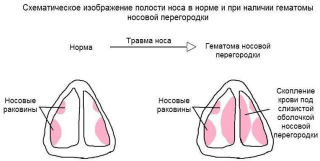 Гематома носовой перегородки на схеме