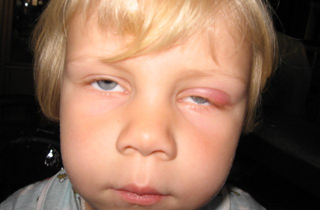 Отек переносицы при ячмене на глазу