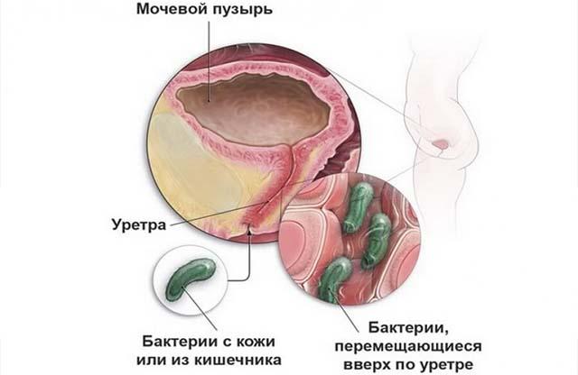 Мочевая инфекция