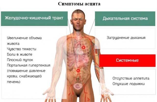 Симптомы асцита