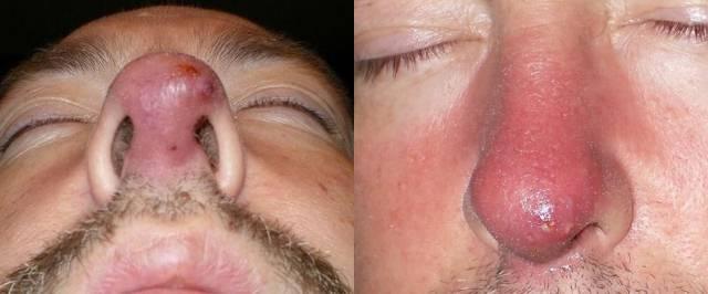Отек носа при наличии фурункула