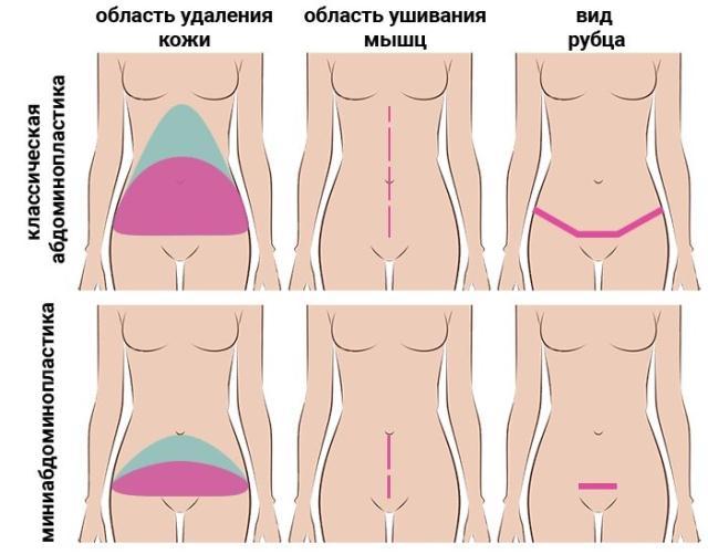 Абдоминопластика живота