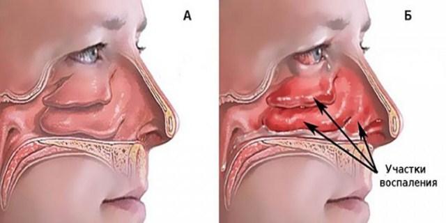 Отек тканей носа при аллергии