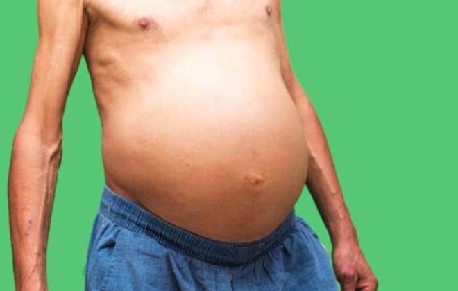 Асцит брюшной полости (водянка)