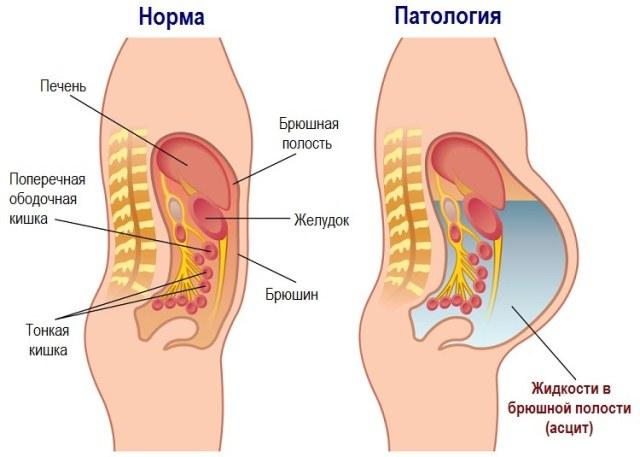 Асцит - скопление жидкости в брюшной полости
