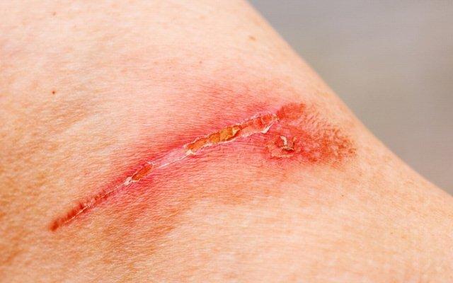 Рана на коже живота