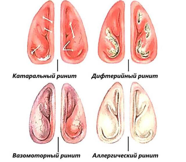 Отечность пазух носа при различных видах ринита