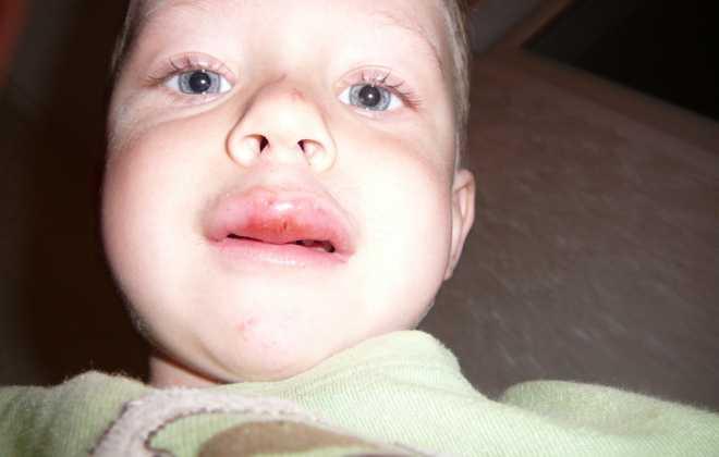 Разбитая опухшая губа у ребенка