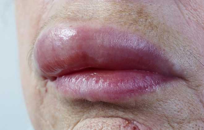 Аллергический отек верхней губы