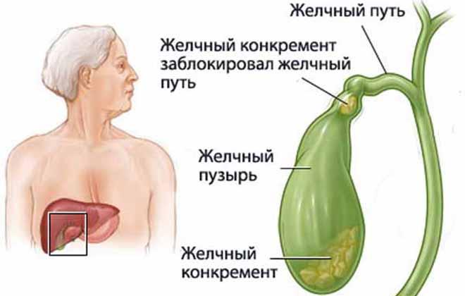 Водянка желчного пузыря