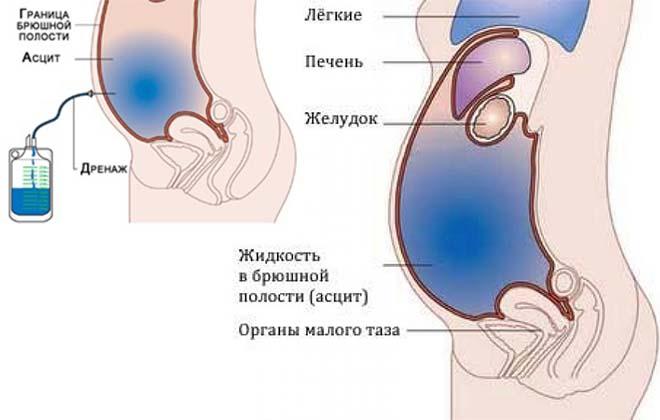 Дренаж брюшной полости
