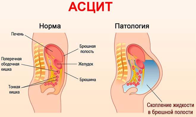 Асцит брюшной полости