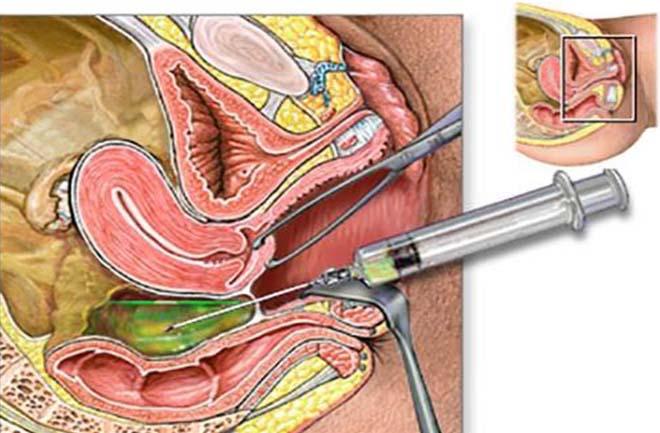 Пункция через задний свод влагалища