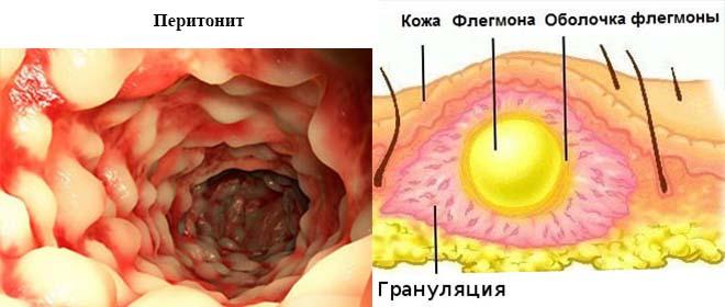 Перитонит и флегмона