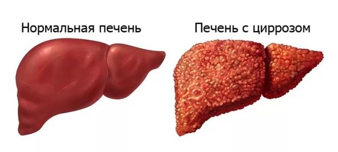 Нормальная печень и с циррозом
