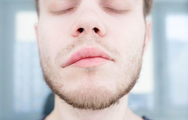 Аллергический отек губ