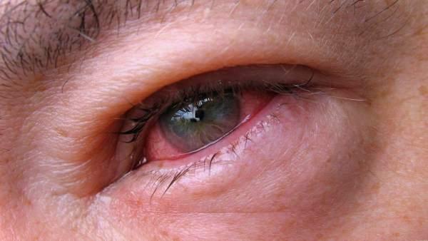 Опухший глаз при конъюнктивите