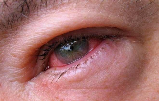 Отек глазного яблока при аллергии