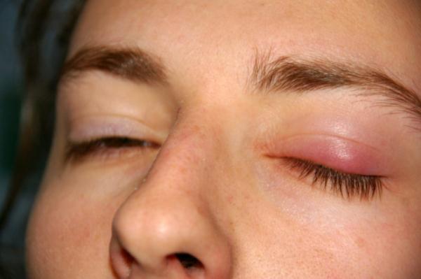 Опухший глаз при ячмене